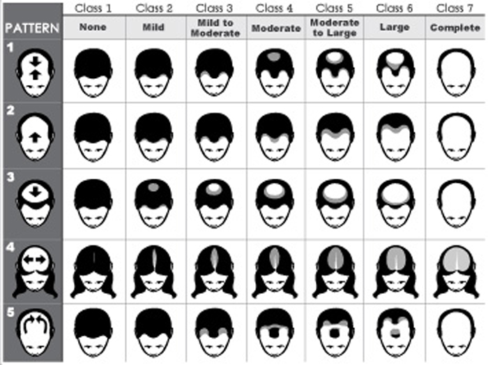 hair-loss-chat